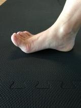 2 toe spreading